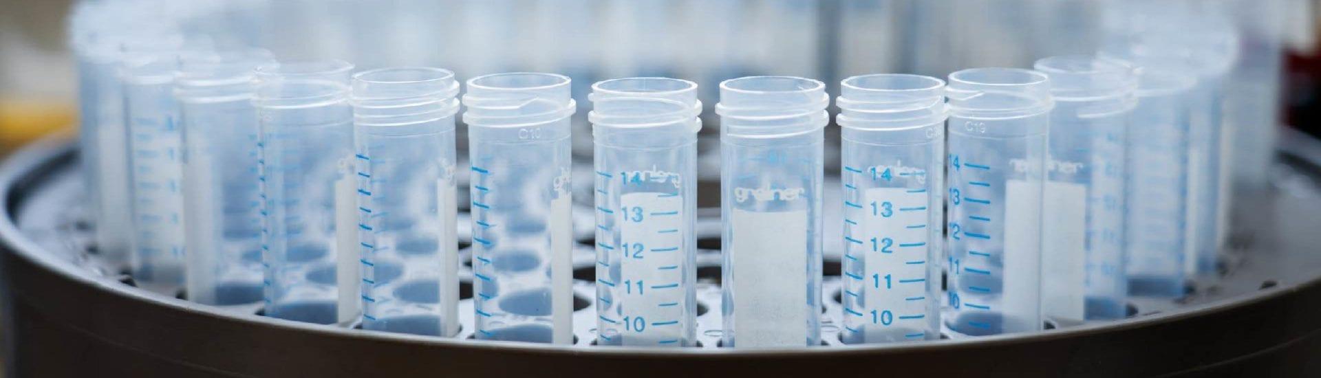 Identificatie van biomarkers voor FSHD