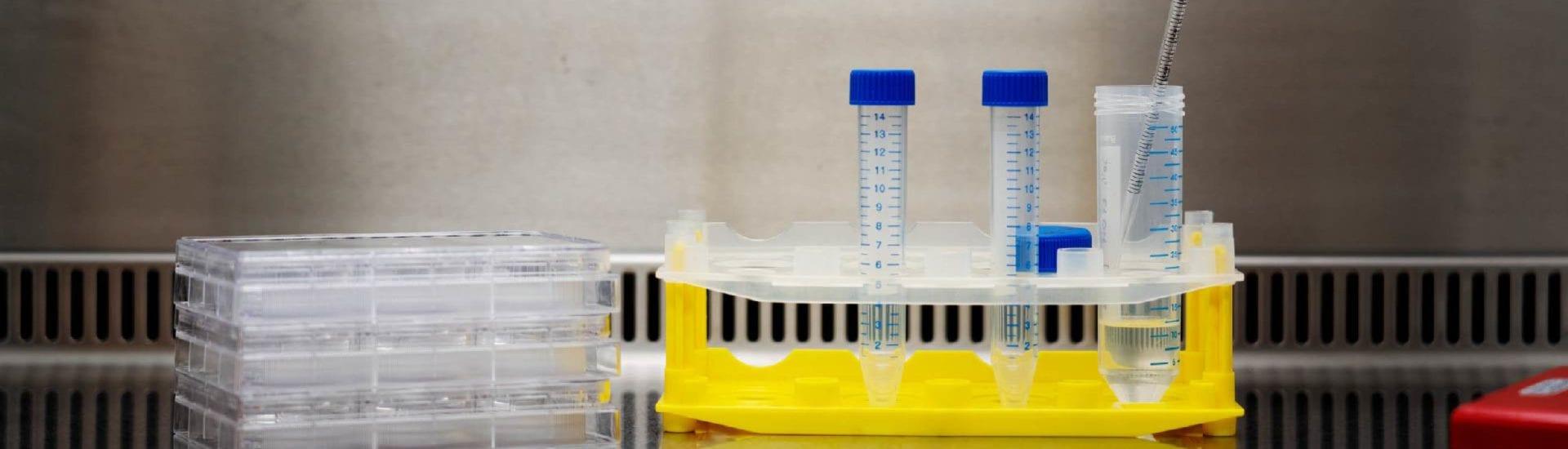 Patiëntenregistratie en natuurlijk beloop myotone dystrofie: de follow-up